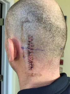 Dave's head wound right after he came home from the hospital. 14 staples!